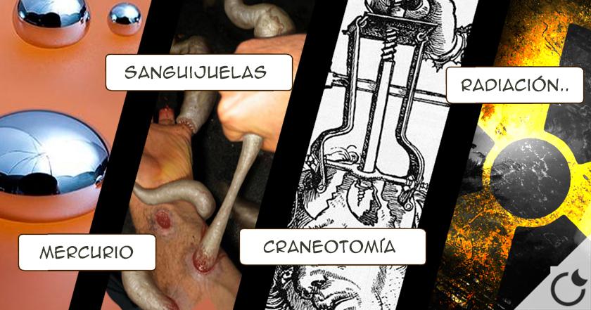 10 Extraños procedimientos médicos que se creían curativos en el pasado.