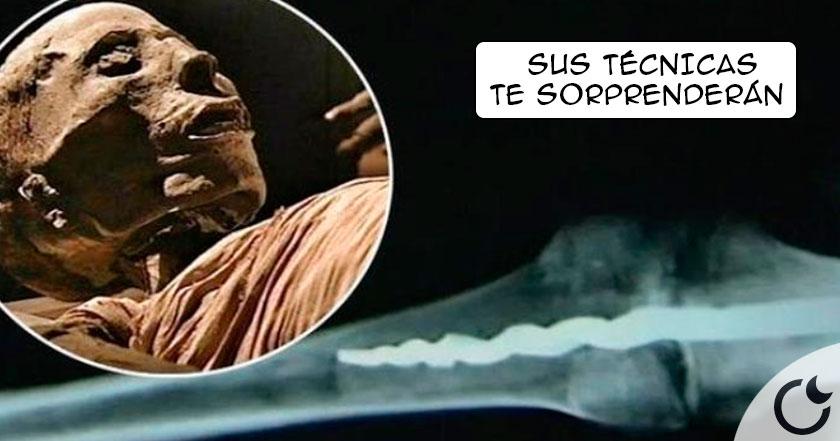Implantes y cirugía moderna en el Antiguo Egipto. Una MOMIA lo desvela.
