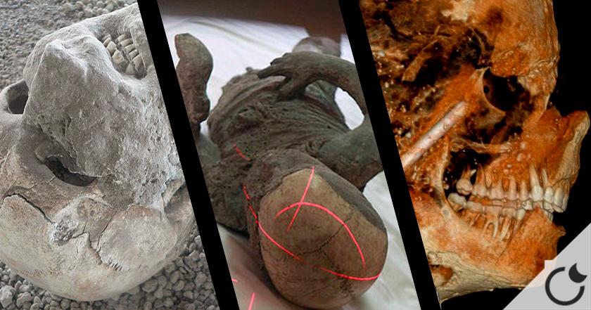 ¿Qué hay dentro de las momias de Pompeya? Científicos revelan sorprendentes resultados.