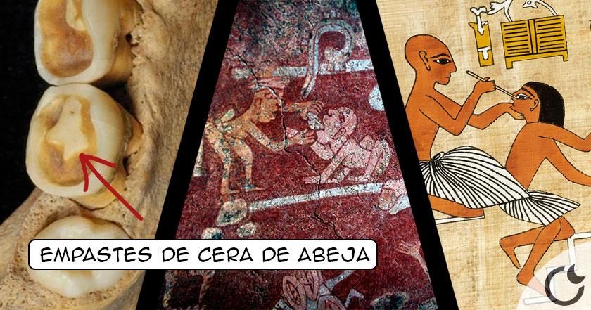Dentistas desde hace 6500 años. SIN ANESTESIA, empastes de CERA y mas BARBARIDADES